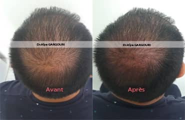 prp cheveux tunisie,prp vidage tunisie